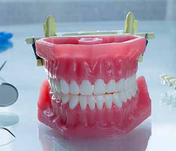 Dentures Dentist Dr. John Aurelia What are Dentures?