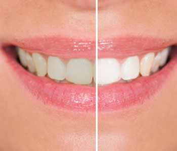 Teeth Whitening Dr. John Aurelia What Methods of Teeth Whitening are Available?