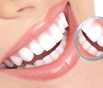 Teeth Whitening Dr. John Aurelia What can professional-grade teeth whitening systems accomplish for Rochester area patients?