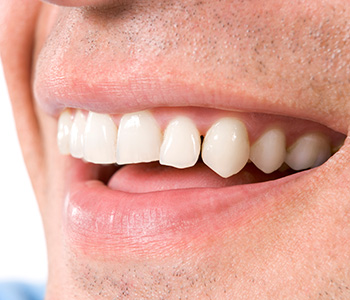 Teeth Whitening Dr. John Aurelia Reasons Lake Orion area patients may need dental crowns placed by their dentist