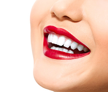 Teeth Whitening Dr. John Aurelia What are the benefits of quality dental bridges in Rochester Hills?