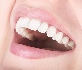 Teeth Whitening Dr. John Aurelia Safe and effective teeth whitening in Rochester Hills