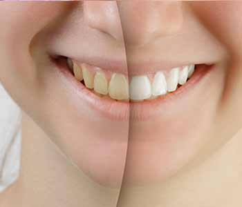 Teeth Whitening Dr. John Aurelia Affordable and stress-free options for teeth whitening near Troy