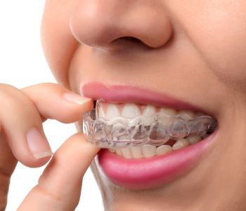 Invisalign in Rochester Hills Dr. John Aurelia Shelby Township area dentist offers invisible aligners as orthodontic alternative