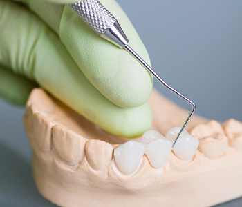 Dental Implants in Rochester Hills Dr. John Aurelia Crown procedure is a versatile way to restore a tooth in Rochester Hills
