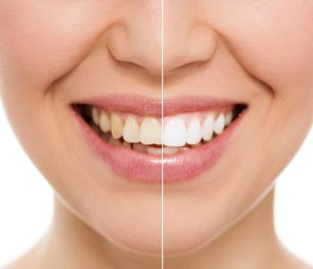 Teeth Whitening Dr. John Aurelia Rejuvenate your smile in just one appointment with Zoom teeth whitening in Rochester Hills, MI