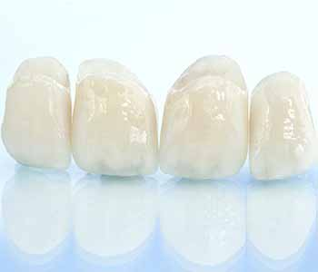 Several types of dental crowns are available at John L. Aurelia, D.D.S., PLLC in Rochester Hills