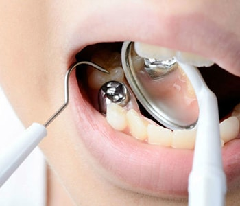 Dental Tooth Filling Rochester Hills MI