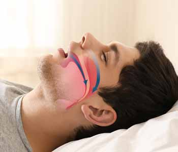 Family Dentistry in Rochester Hills Dr. John Aurelia Rochester Hills dentist helps sleep apnea patients understand sleep disorder myths and facts