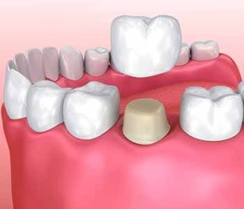 Dental Implants in Rochester Hills Dr. John Aurelia Benefits of dental crowns & bridges service in Rochester MI
