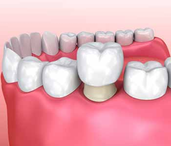 Dental Implants in Rochester Hills Dr. John Aurelia Rochester, MI area dentist describes the purpose of dental crowns