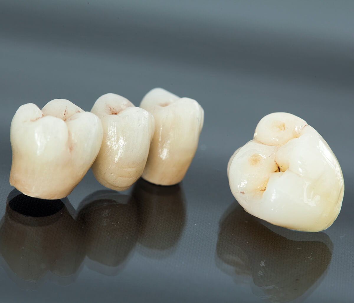 How Sturdy Will My Porcelain Crowns Be in Rochester, MI Area