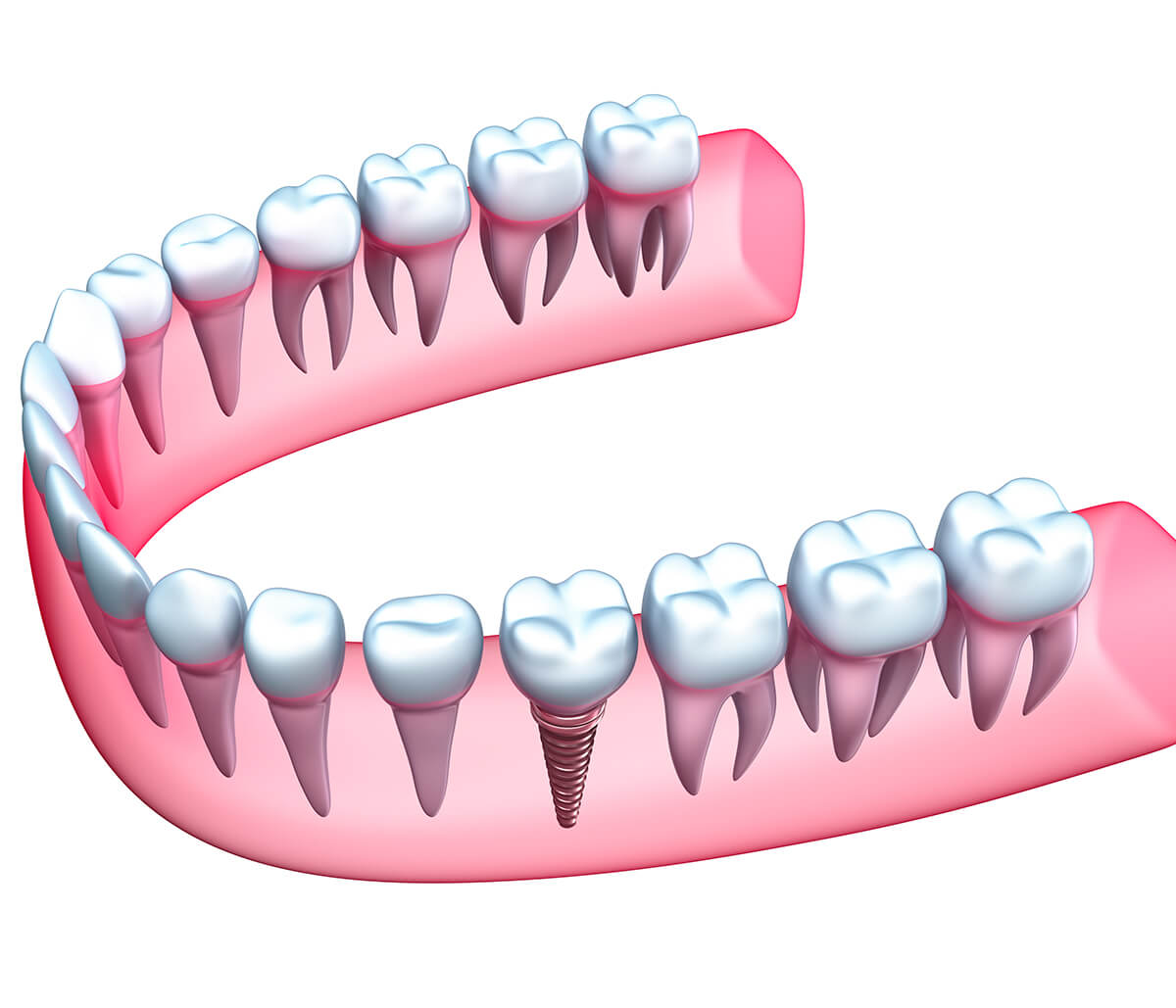 Implant Based Dental Restorations in Rochester Area