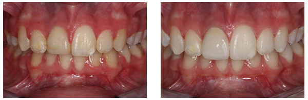 Before After Cosmetic Bleaching and Crown 1