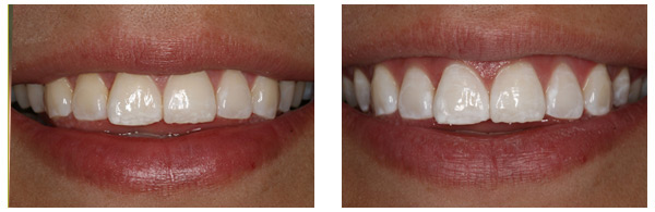 Before After ZOOM Whitening Procedure case 1