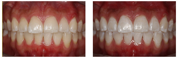 Before After ZOOM Whitening Procedure case 2