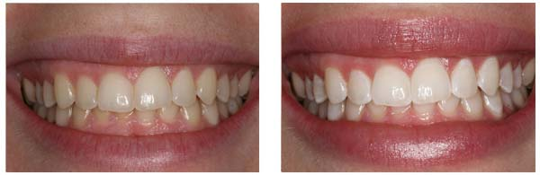 Before After ZOOM Whitening Procedure case 3