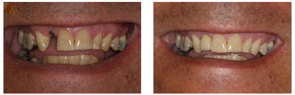 Before After Dental Implant 02