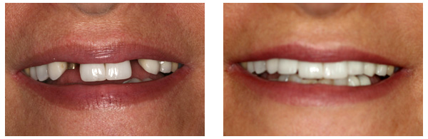 Before After Dental Implant 03