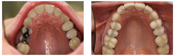 Before After Dental Crowns and Bridges Procedure Case 1