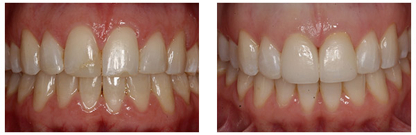 Before After Cosmetic Dentistry Procedure case 2