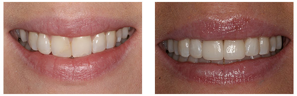 Before After Cosmetic Dentistry Procedure case 1