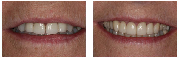 Before After Dental Crowns and Bridges Procedure Case 2