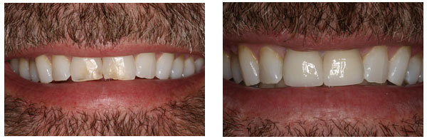 Before After Cosmetic Dentistry Procedure case 4