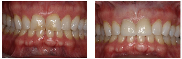Before After Cosmetic Dentistry Procedure case 5