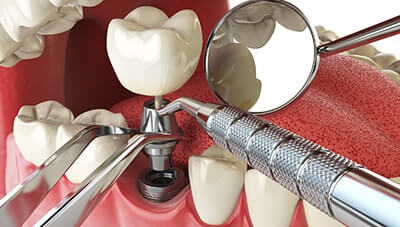 Dental Crowns and Bridges Rochester Hills
