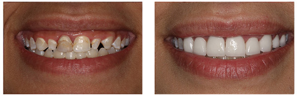 Before After Dental Implant treatment