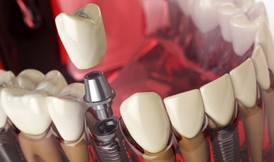 Dental Implants Rochester Hills