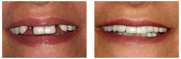 Before After Dental Implants Procedure Case 1