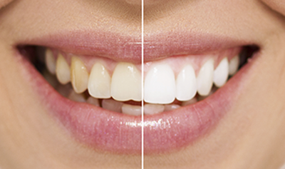 Teeth Whitening before and After example